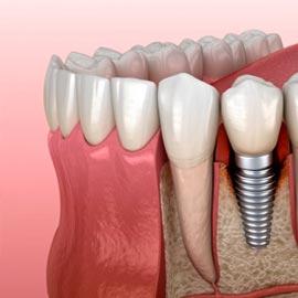Материал для зубов