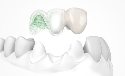 Европейские стоматологические материалы